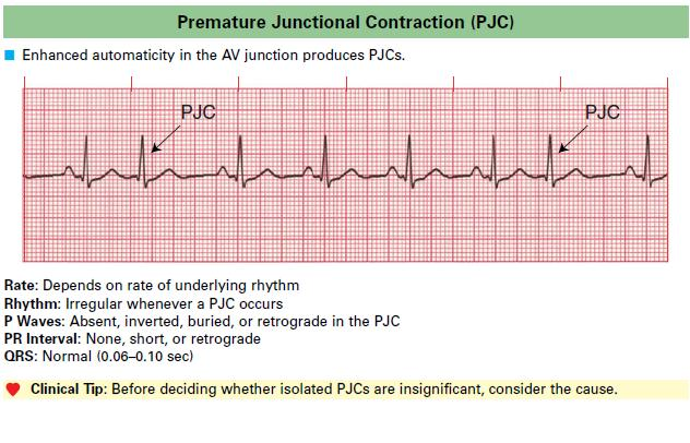 Premature Junctional Contraction PJC