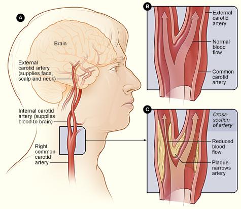 Arterial Disorders