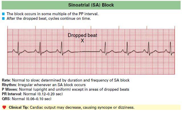 Sinoatrial (SA) Block