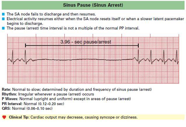 Sinus Pause (Sinus Arrest)