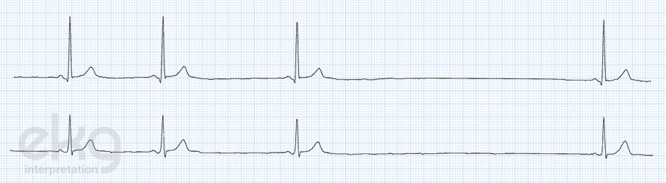 sinus-arrest-ekg-ecg