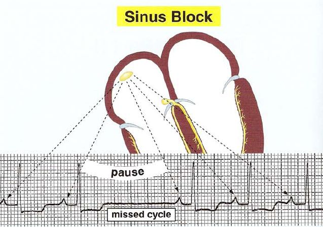 sinus block