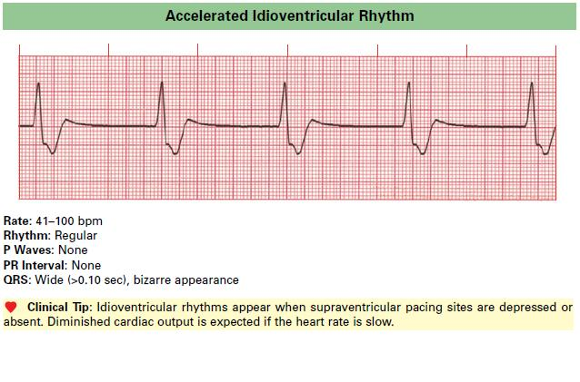 Accelerated_Idioventricular_Rhythm