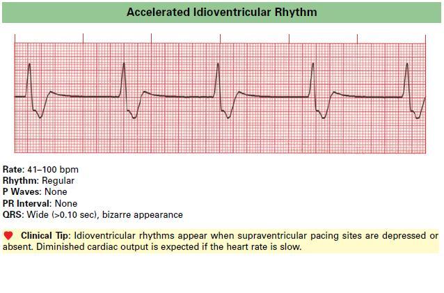 Accelerated_Idioventricular_Rhythm