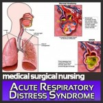 Acute_Respiratory_Distress_Syndrome_1