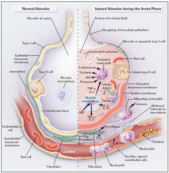 Acute_Respiratory_Distress_Syndrome_Pathophysiology_2