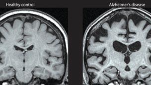 Alzheimers_brain_MRI