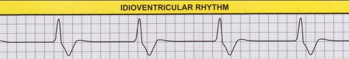 Idioventricular Rhythm - ECG