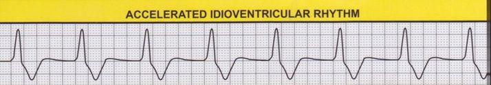 Idioventricular_Rhythm_-_ECG