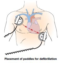 Placement_of_paddles_for_defibrillation