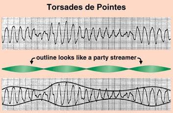 Torsade_de_Pointes_1
