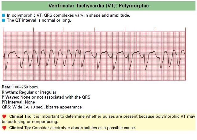 Ventricular_Tachycardia_VT
