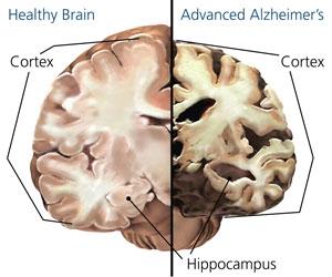alzheimers-brain-image