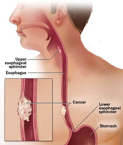 esophageal cancer 2