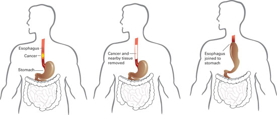 esophageal cancer Surgery 1