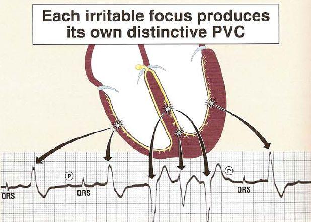 multiform_PVC