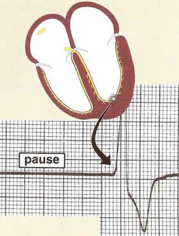 ventricular_Escape