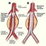 کاشتن گرافت داخل عروقی در Abdominal Aortic Aneurysm