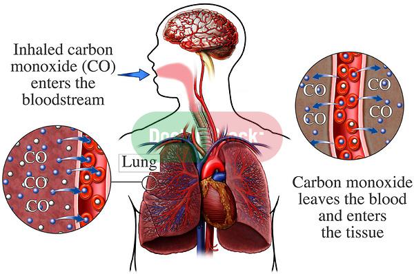 Carbon Monoxide Posoning 4