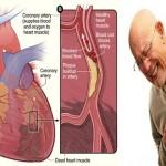 آنفارکتوس میوکارد – سکته قلبی ( آموزش به بیمار )