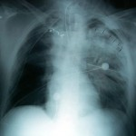 Pulmonary Contusion