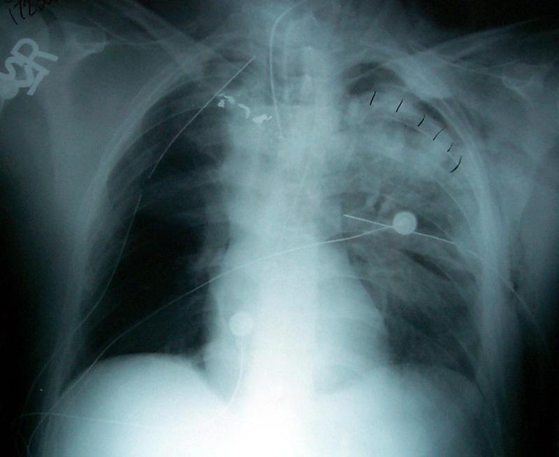 Pulmonary Contusion 2