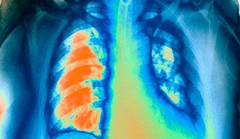 Pulmonary embolism CXR
