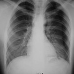Simple Pneumothorax