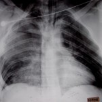 Tension pneumothorax despite presence of chest tubes.