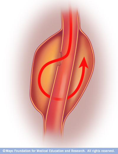 dissection Aortic Aneurysm