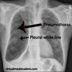 simple pneumothorax xray