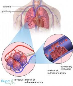 pulmonary embolism 2