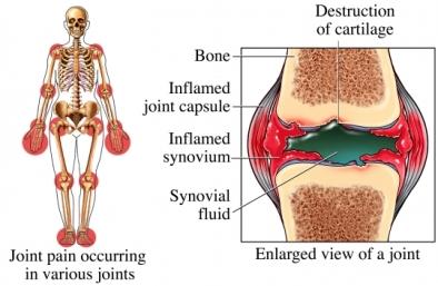 rheumatoid_arthritis_2