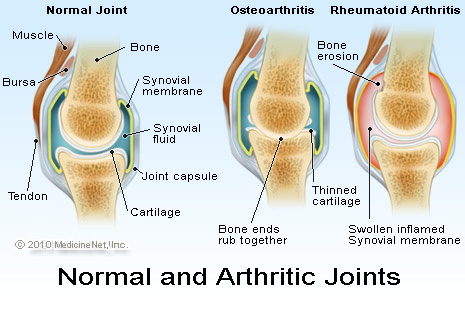 rheumatoid_arthritis_joints