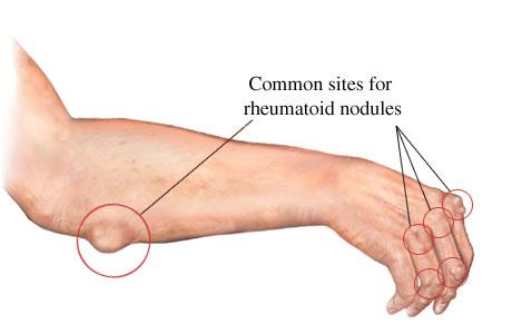 Se è la cicoria possibile a dermatite atopic
