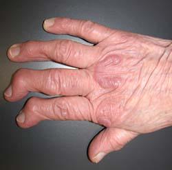 rheumatoid_arthritis_nodules_2