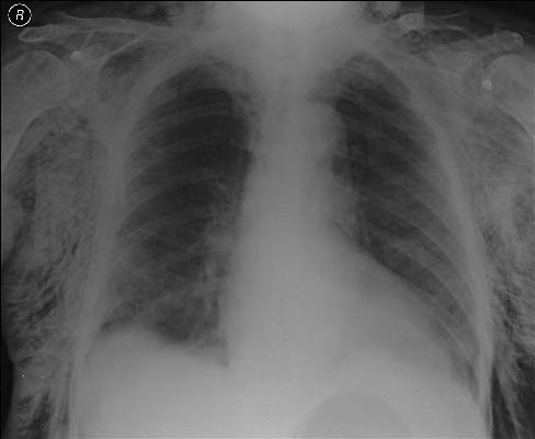 subcutaneous emphysema2