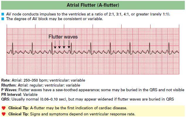 Atrial Flutter (A-flutter)