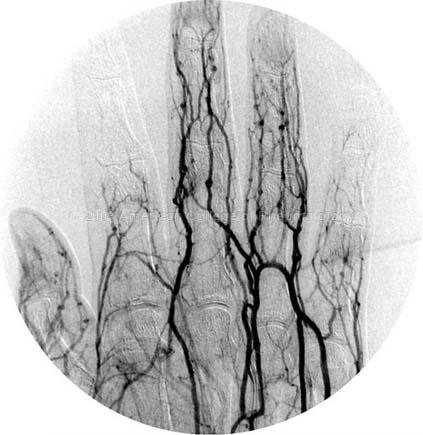 Buergers Disease: Hand