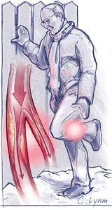 Occlusive Peripheral Arterial_Disease