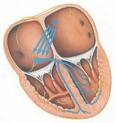 Supraventricular Tachycardiya