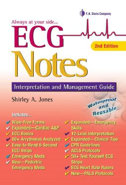 ECG Notes Interpretation and Management Guide