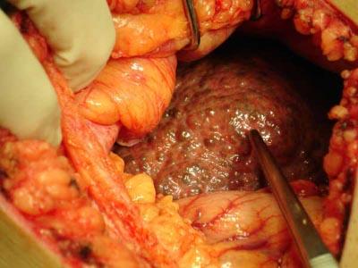 CirrhosisSurgery