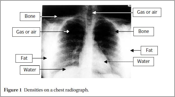 Densities on a chest radiograph.