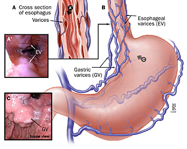 Esophageal varices2