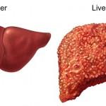 Liver_Cirrhosis