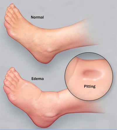 edema foot