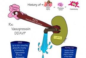 Central-Diabetes-Insipidus
