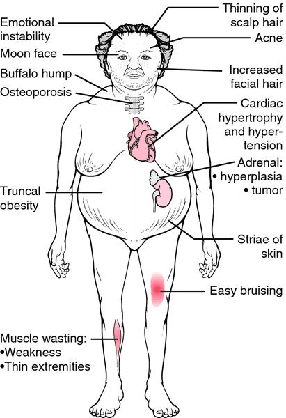 cushings-syndrome 2