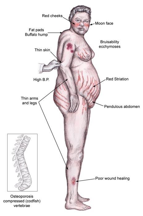 cushings-syndrome